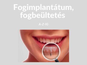 Fog implantátum A-Z-ig